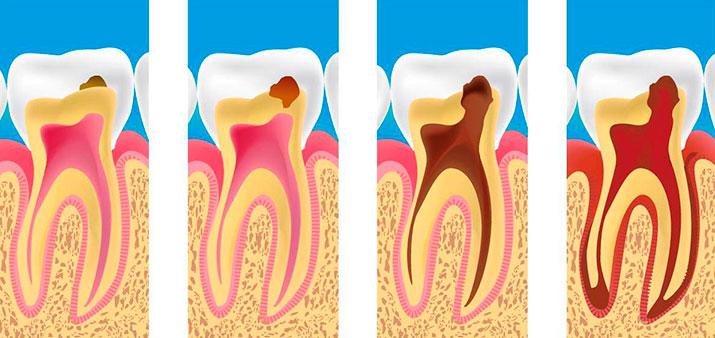 лечение осложнений кариеса зубов