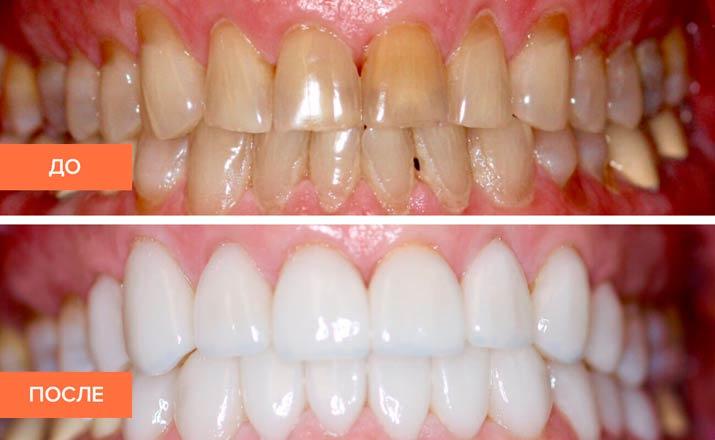 виниры на зубы саранск