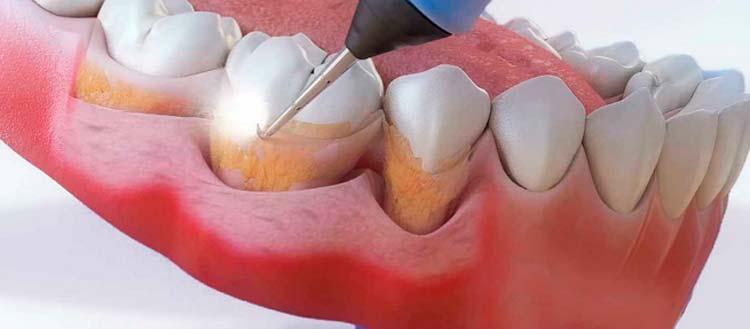 зубные камни причины образования как убрать