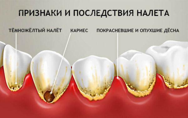 Priznaki-i-posledstiya-zubnogo-naleta-600x378